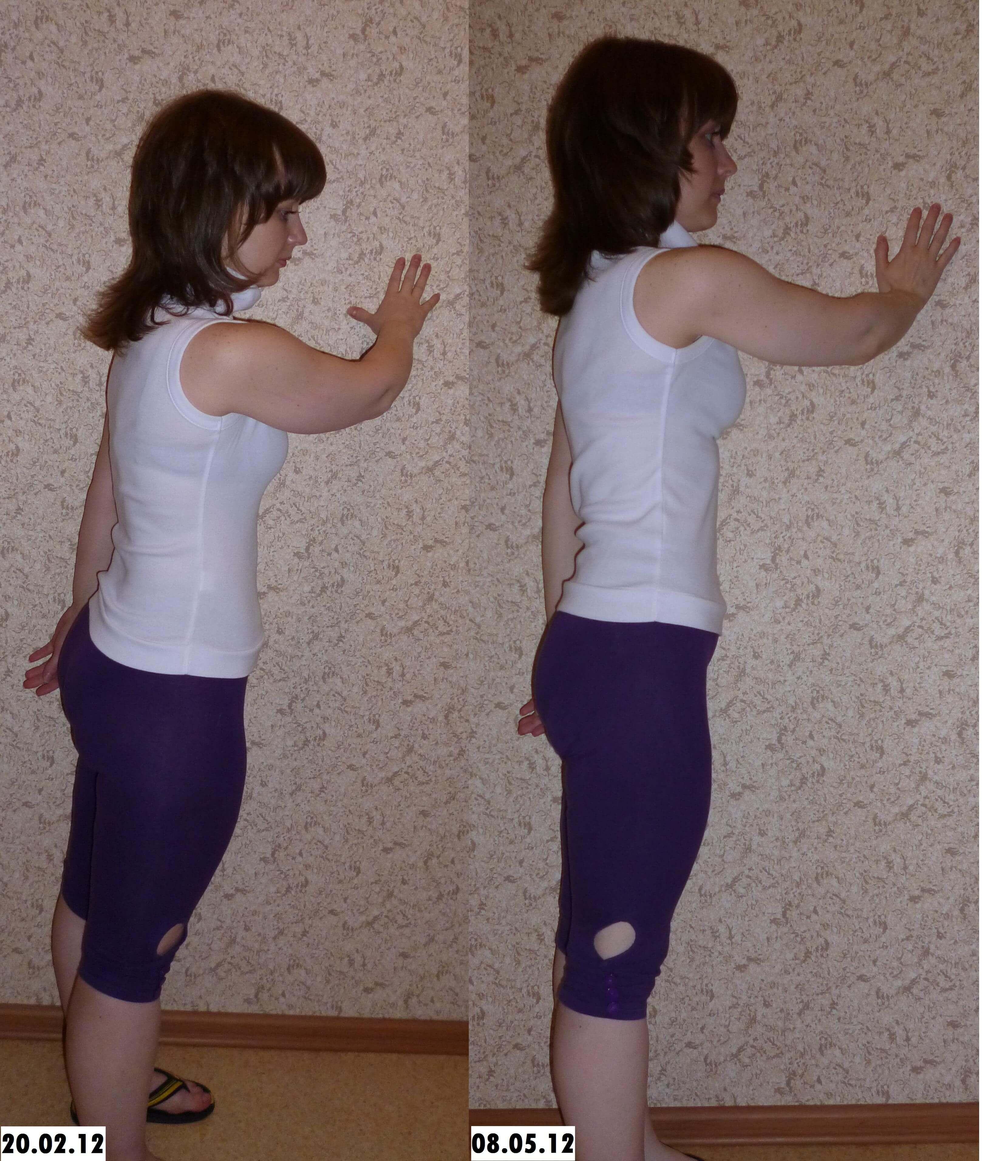 Занятия на фитболах для похудения : МедРФ